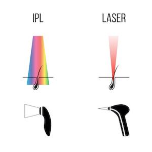 IPL hair removal vs Laser