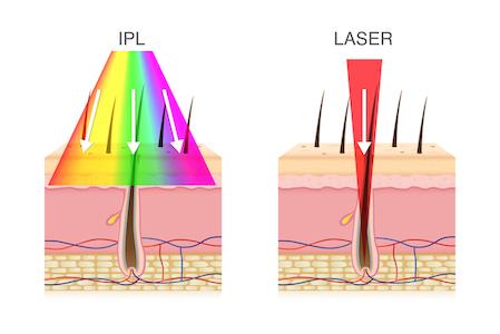 IPL vs lase hair removal